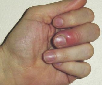 Finger Infection Pictures, Treatments & Home Remedies