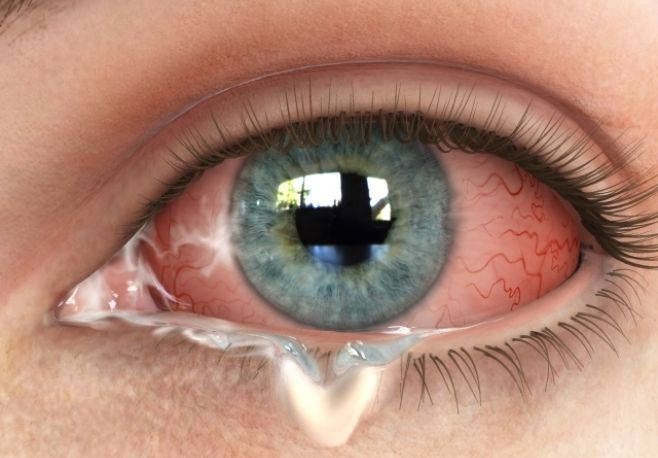 how to stop conjunctivitis early